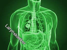 Larynxkanker